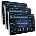 Scharf bis ins Detail – Großbildmonitore und Panel PCs für medizinische Anwendungen